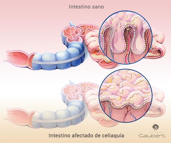 Ilustracion intestino normal y celiaco