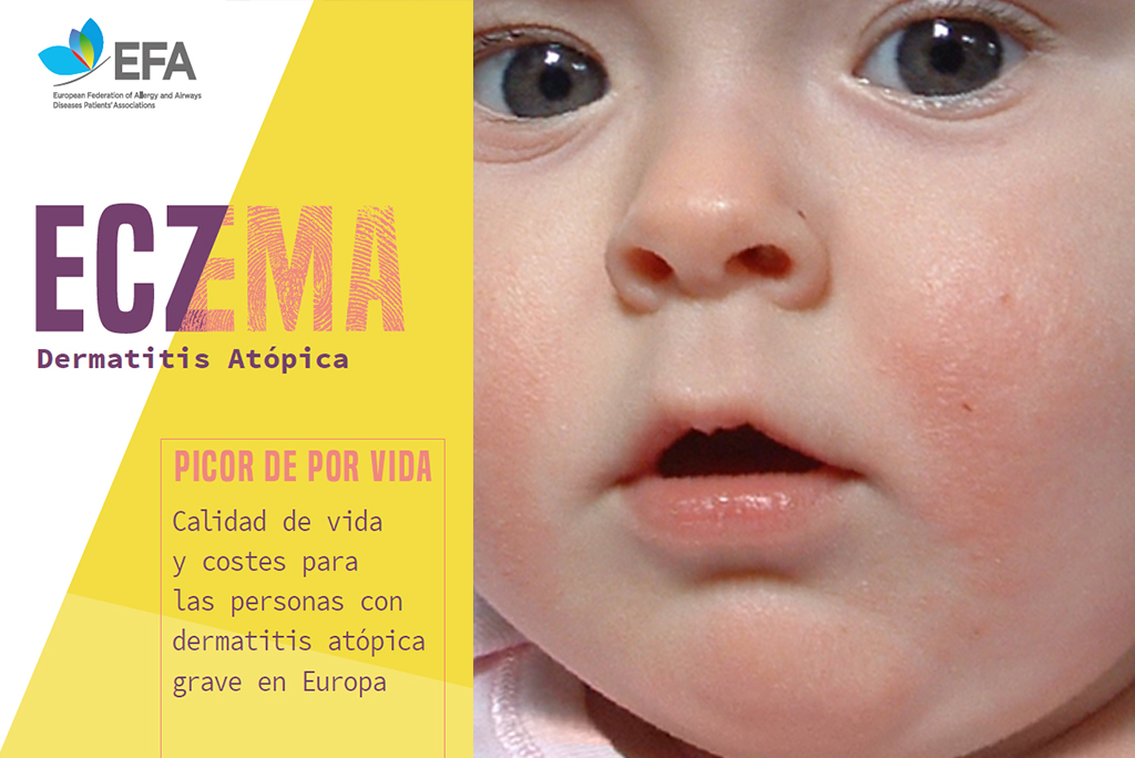 ECZEMA-dermatitis-atópica-bebe